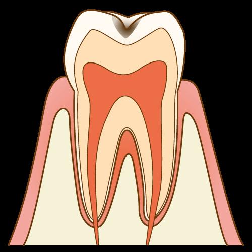 痛みのない小さな虫歯