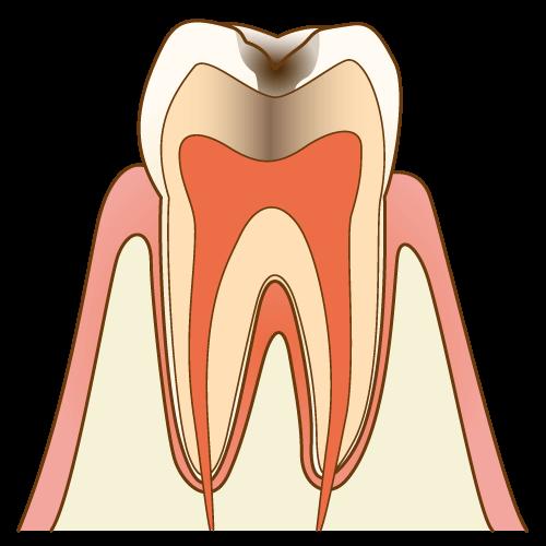 痛みを感じる虫歯
