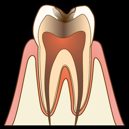 激しい痛みを感じる大きな虫歯