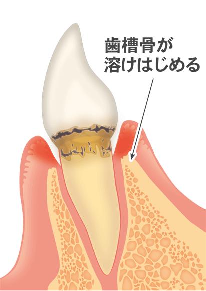 軽度歯周炎(歯槽骨が溶けはじめる)